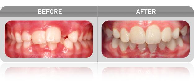 Myobrace-Before-After