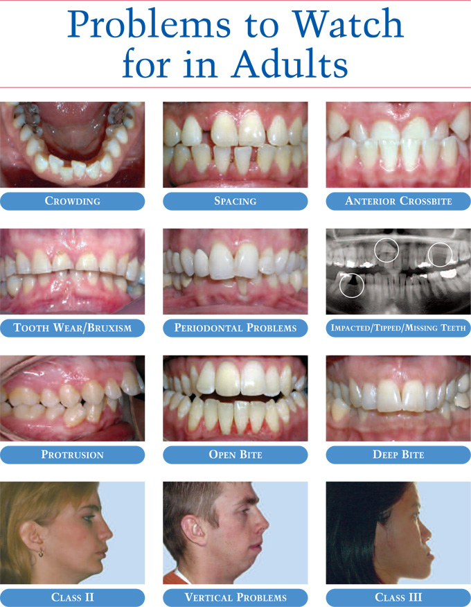 Adults with missing teeth